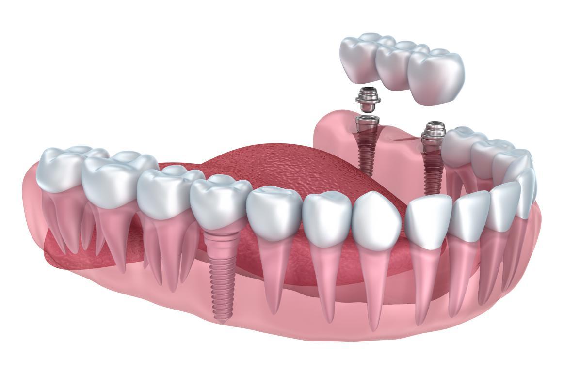 Implantologie dentaire : comment ça se passe ?