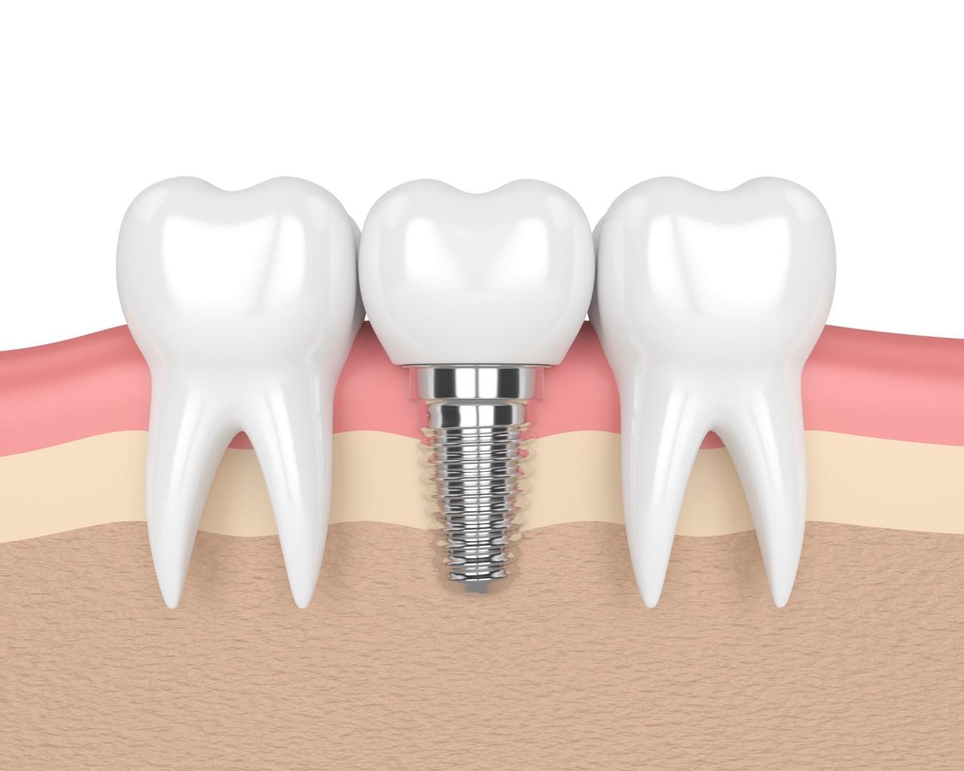 Implant dentaire : pourquoi sont-ils généralement en titane ?